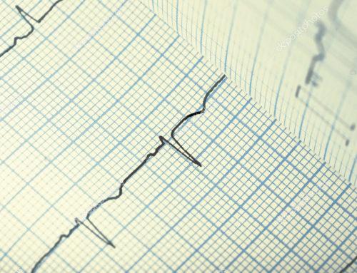 تخطيط القلب كيف تقرأه؟ How to read ECG